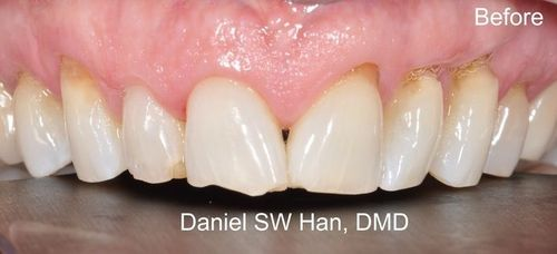 Image of teeth before veneers
