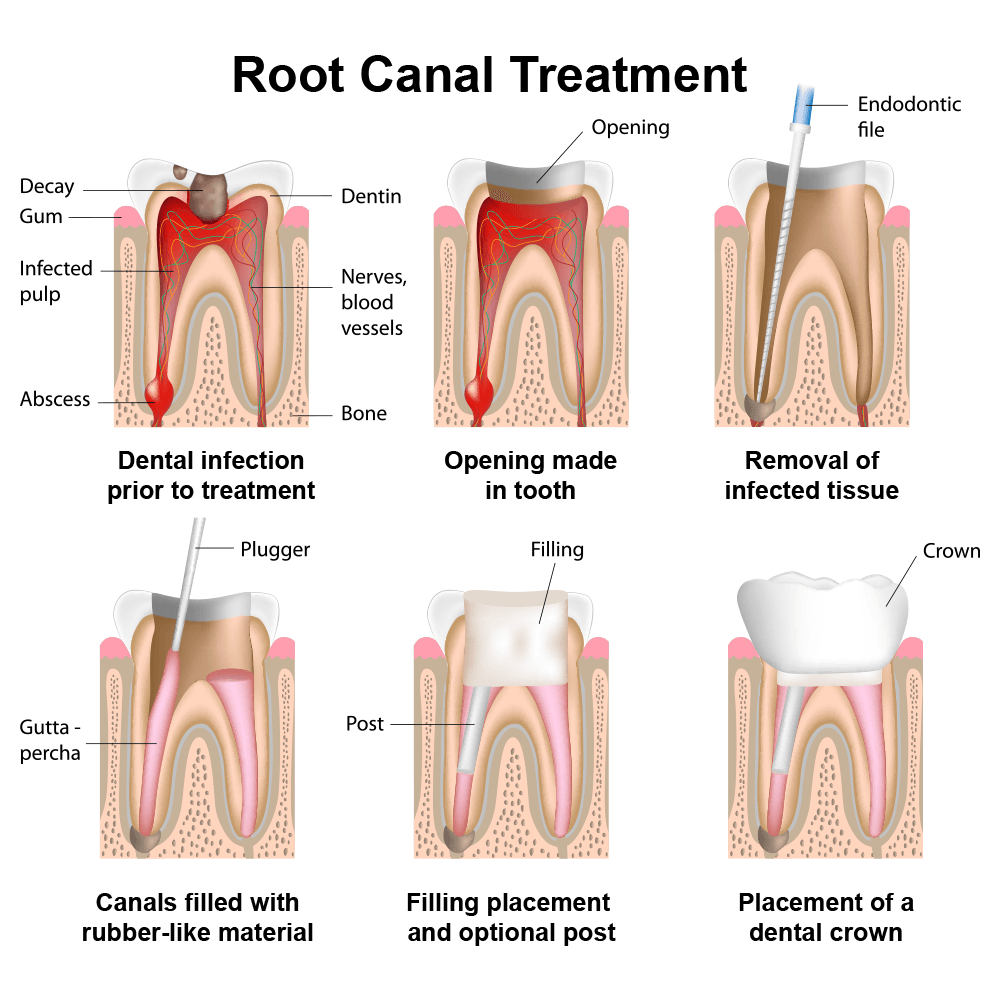 Diagram of the stages of a root canal procedure