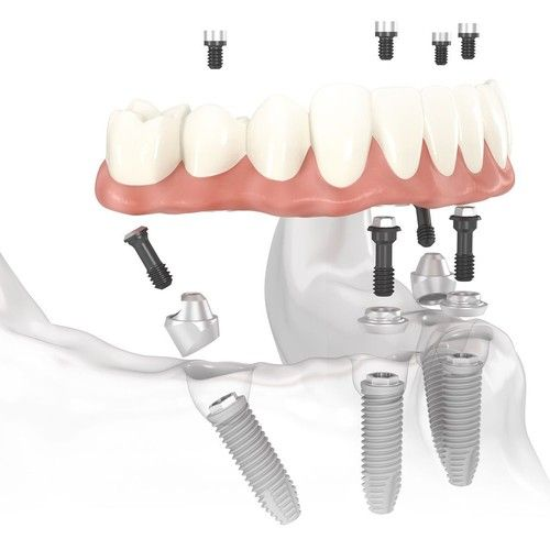 Illustration of implant-supported dentures.