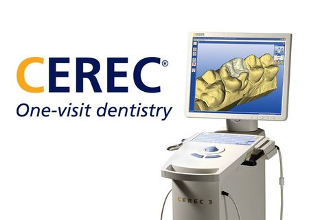 Photo of the CEREC system