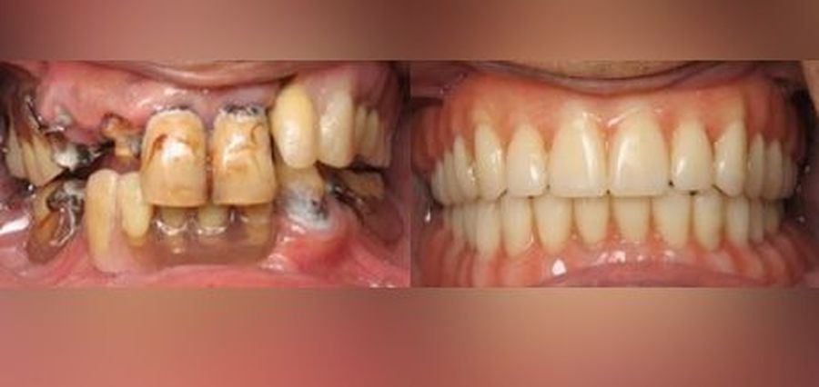 Before and after Snaptite Smile® pictures