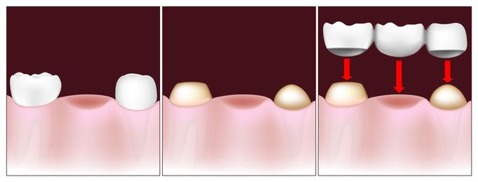 Illustration of how a traditional bridge fits onto crowned teeth