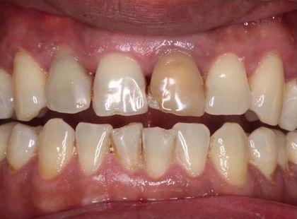 Before porcelain veneers treatment.
