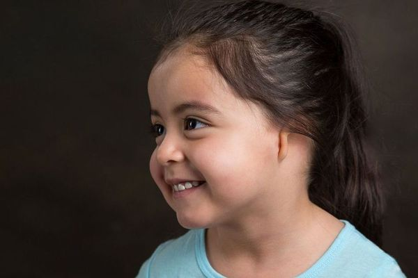 Little girl with misshapen ear smiling