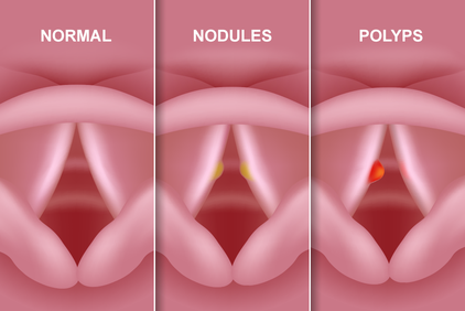 Three side by side images illustrating normal vocal cords and vocal cords with nodules and polyps