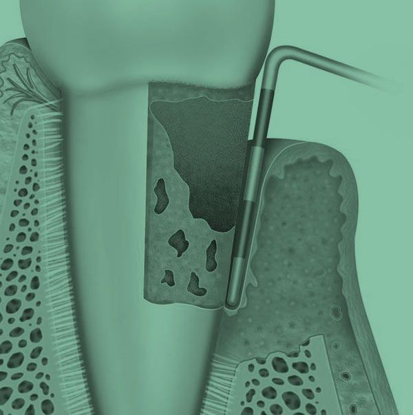 dental treatment in progress