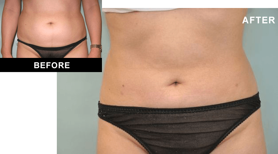 Before and after liposuction surgery