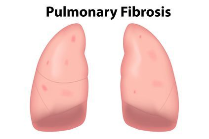 Illustration of lungs with pulmonary fibrosis