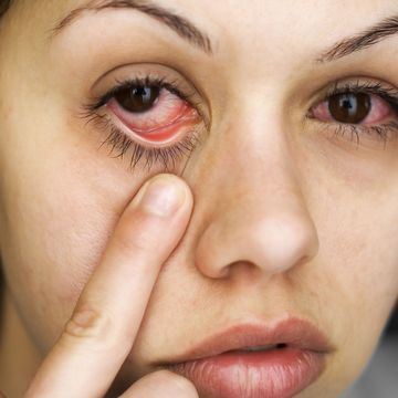 Woman pulling down eyelid to show red, inflamed tissue