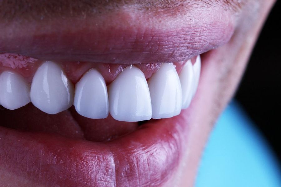 Close-up of porcelain veneers in patient's mouth.