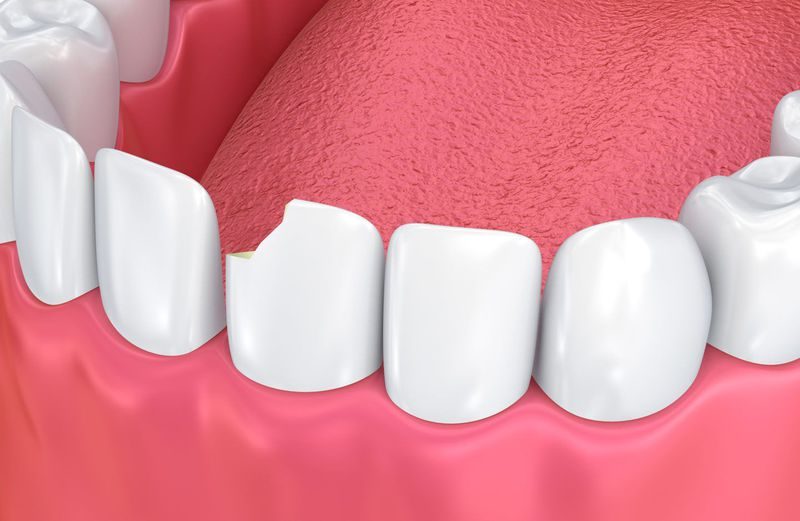 A chipped tooth in need of dental bonding.
