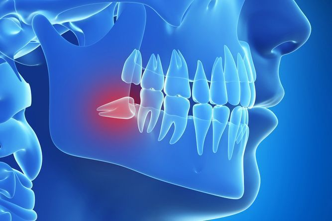 Illustration of jaw in blue with impacted wisdom tooth shown in red