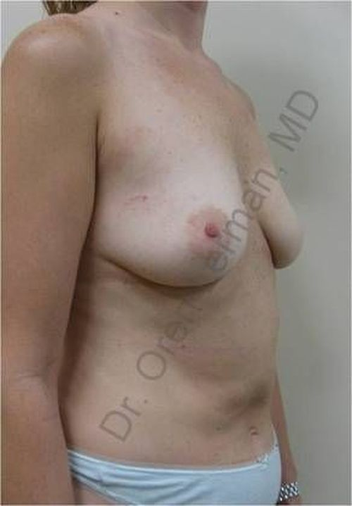 Image of before DIEP flap surgery