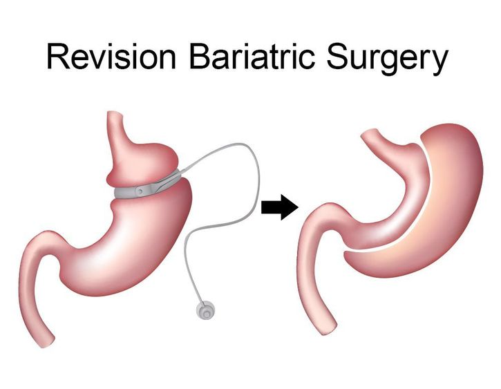 Revision bariatric surgery