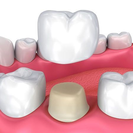Illustration of a aame-day dental crown.