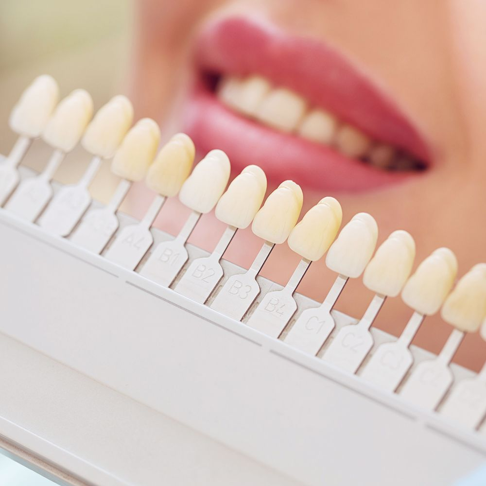 A row of different shades of porcelain veneers.