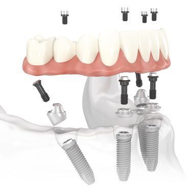 Image of All-on-4 implant placement