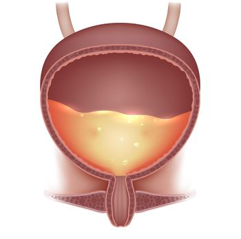 Cutaway illustration of a full bladder