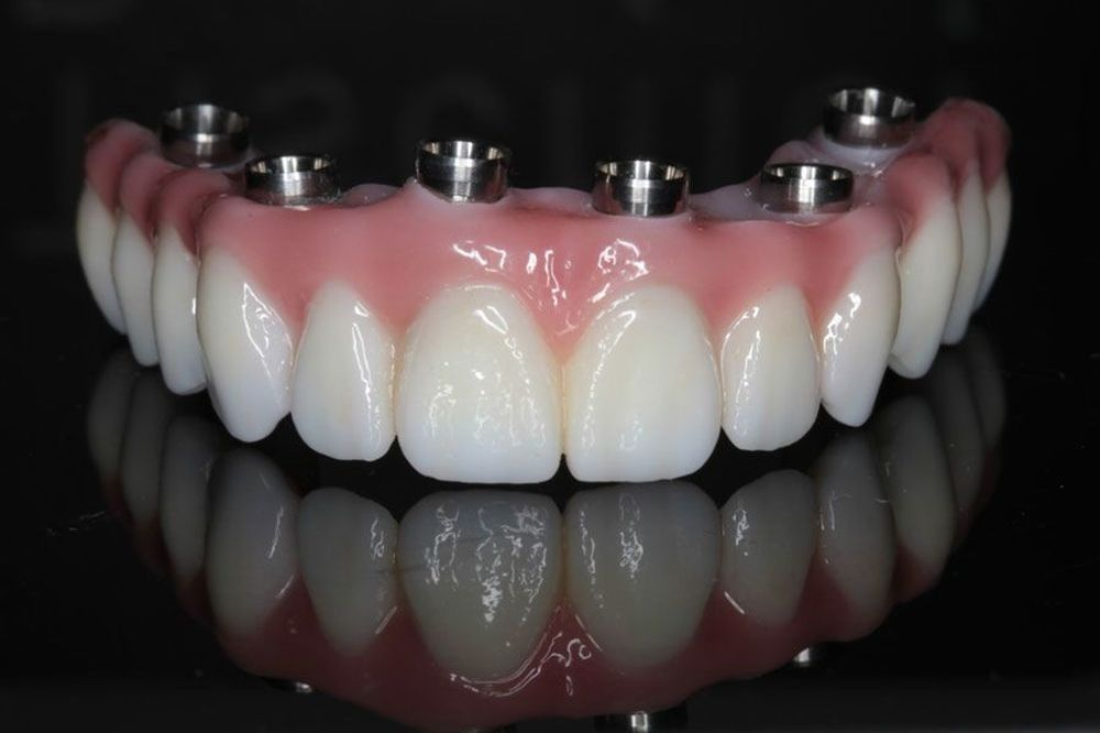 An image of an implant-supported denture