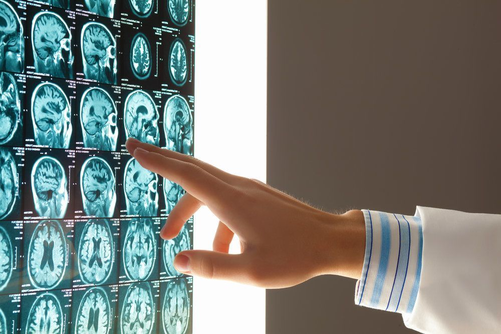 Physician reviewing an x-ray of a patient's brain injury.