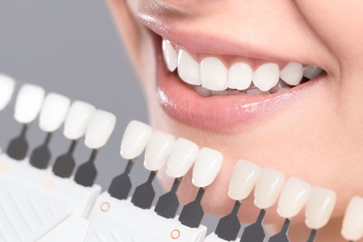 Whitening shade guide next to woman's teeth