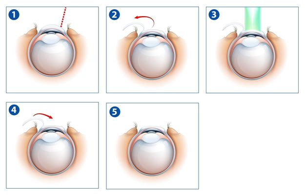 Illustration of LASIK surgery