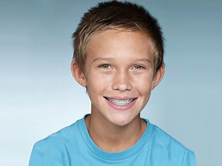 Image of adolescent boy Nicholas smiling with braces