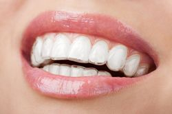 Invisalign aligners on woman's teeth.