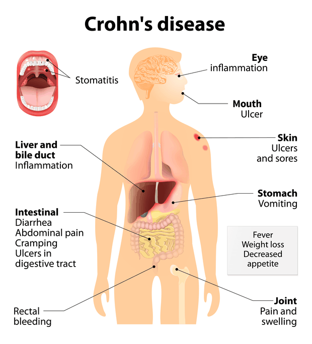 illustration of Crohn's disease symptoms
