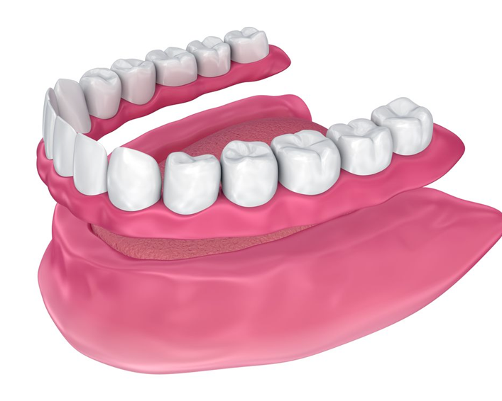 dentures illustration