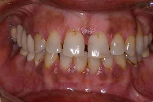 Before and after photos of porcelain veneers