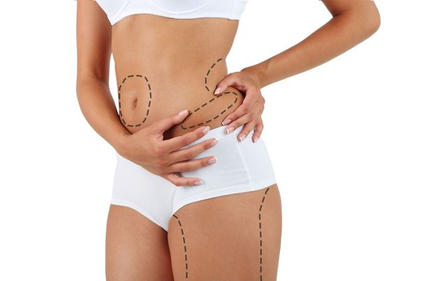Markings on a woman's body that show common areas for liposuction