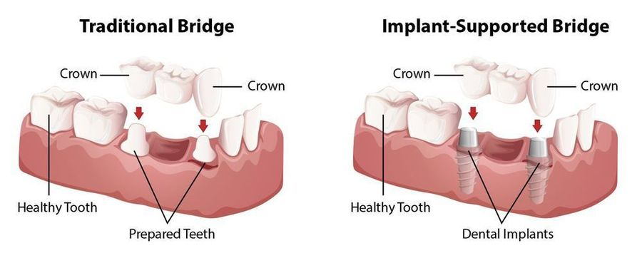 diagram of a traditional bridge and an implant-supported bridge
