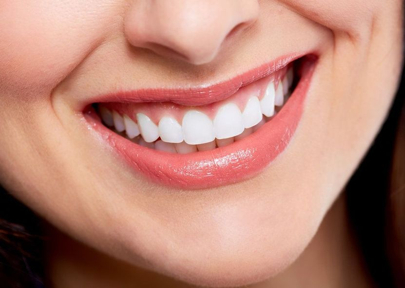 Close up of woman's very white teeth