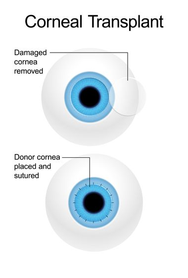 Illustration of a corneal transplant.