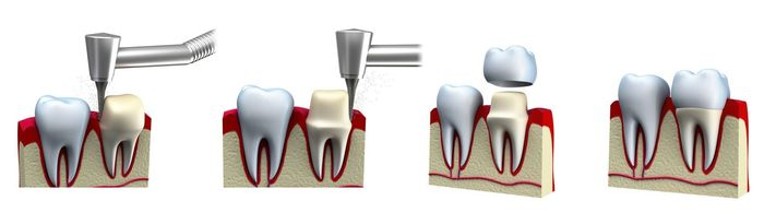 Illustration showing steps of traditional dental crown