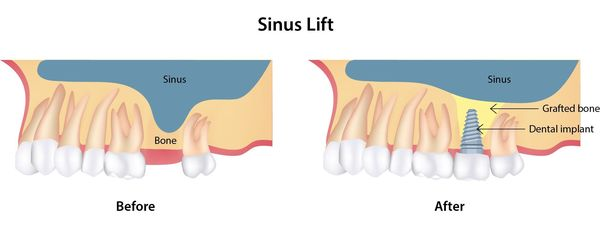 Before and after a sinus lift