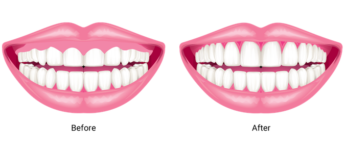 Side by side illustrations of a smile before and after removal of excess gum tissue