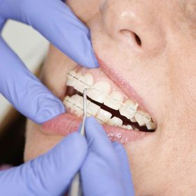 Woman with ceramic braces receiving treatment