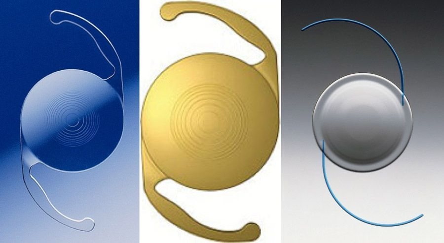 three types of iols
