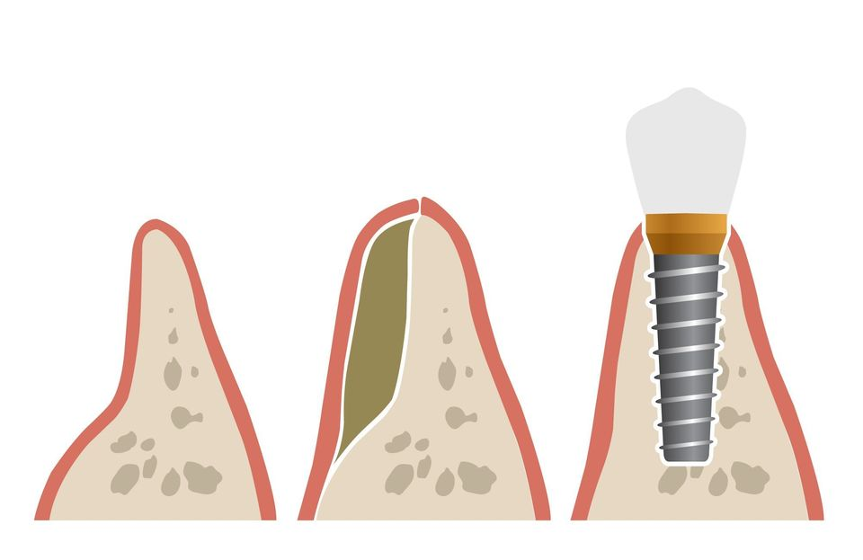 illustration of bone graft stages with a dental implant