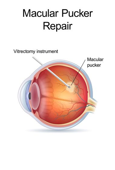 Macular pucker being repaired through vitrectomy treatment.