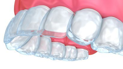 illustration of clear braces