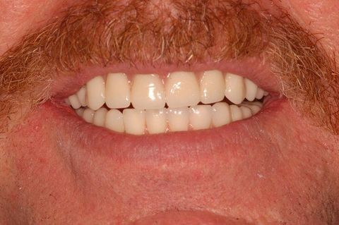 A side-by-side comparison of a patient's mouth before and after dental implant surgery.