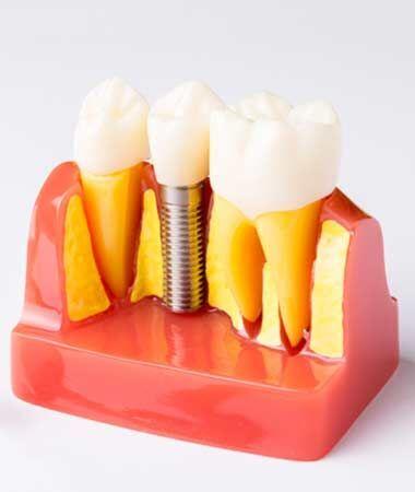 image of dental implants