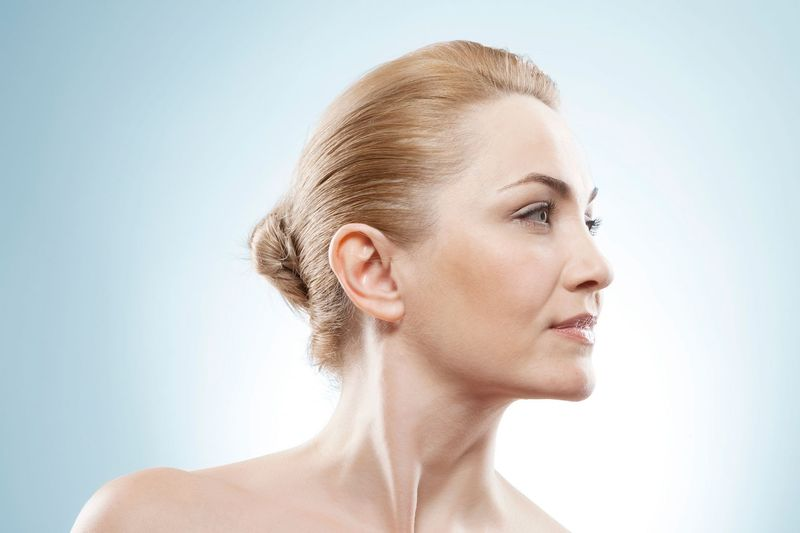 Patient's side profile, accentuating chin and neck.