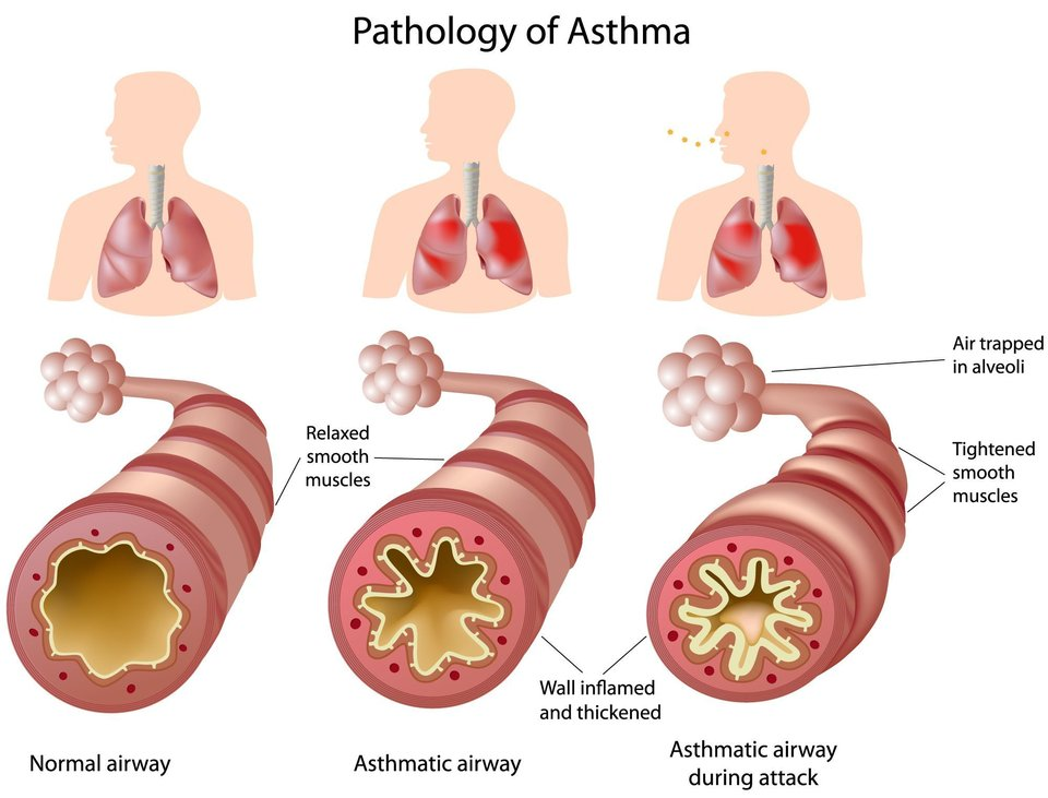 Illustration comparing a healthy airway to one with asthma