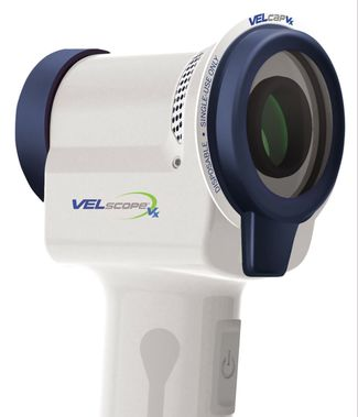 Photo of the VELscope handpiece