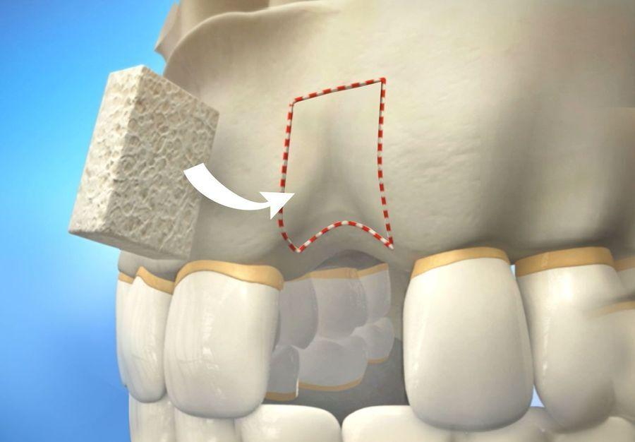 illustration of a bone graft
