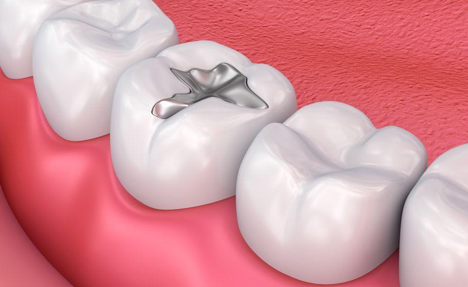 image of dental filling